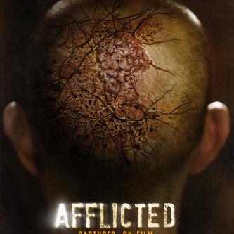 Une bande-annonce pour l'effrayant Afflicted